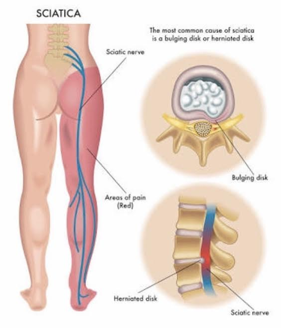 Illustration of a bulging disc injury